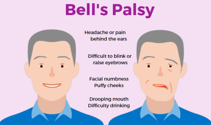 Thomson Chinese Medicine Bell's Palsy